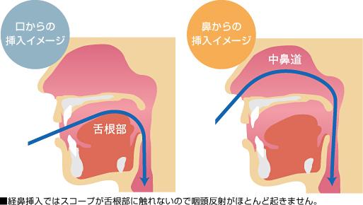 口から入れる「経口内視鏡」と、鼻から入れる「経鼻内視鏡」の2つのタイプ